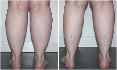 Phương pháp giúp bạn có đôi chân thon gọn